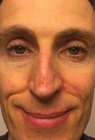 Bioptron Wound Healing 4